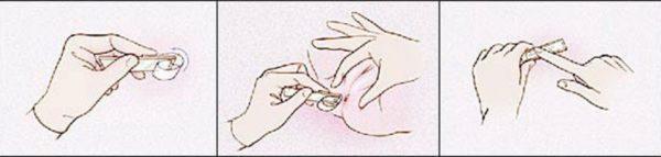 Для соскоба на энтеробиоз часто применяют прозрачный скотч