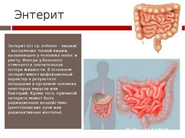 Энтерит – воспаление кишечника