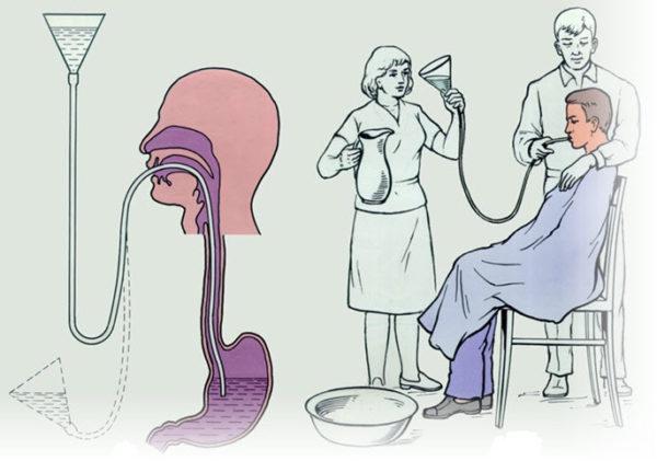Если человек самостоятельно не может промыть желудок, ему неообходимо помочь. Это позволит быстро вывести токсины из организма и улучшить самочувствие