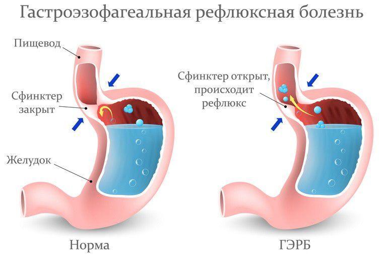 Диета при ГЭРБ с эзофагитом - правила питания, примерное меню