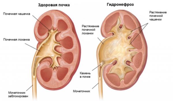 Гидронефроз - одно из распространенных заболеваний мочевыводящей системы