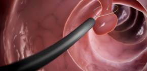 Гиперпластический полип желудка: что это такое?