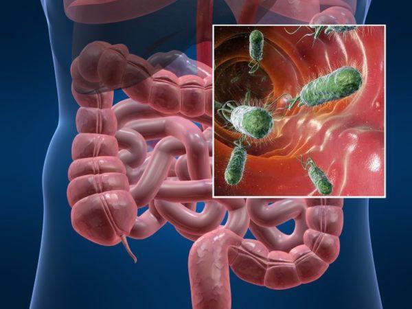 Helicobacter pylori - главная причина поражения слизистой оболочки