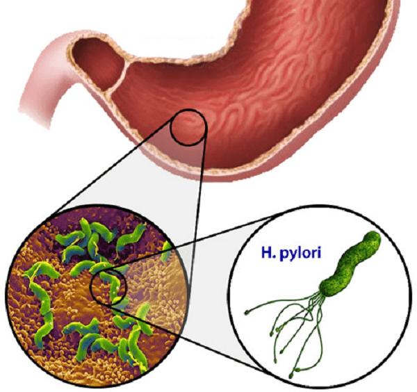 Хеликобактер пилори разрушает стенки желудки