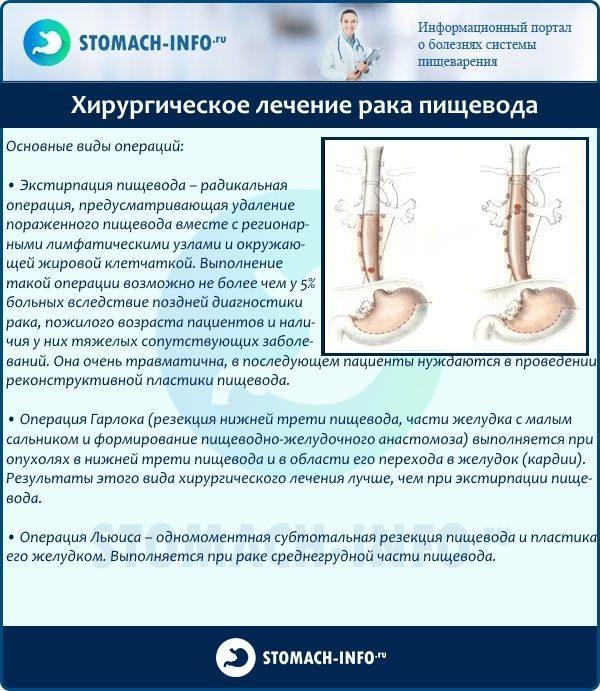 Хирургическое лечение рака пищевода