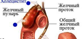 Холецистит, холестероз