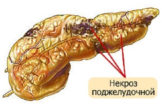 Изображение панкреонекроза поджелудочной железы