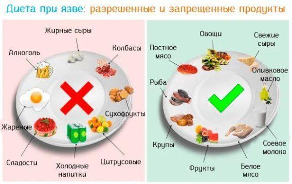 Как правильно питаться при наличии язвы
