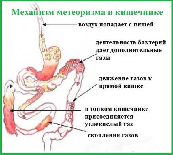 Как происходит метеоризм в кишечнике