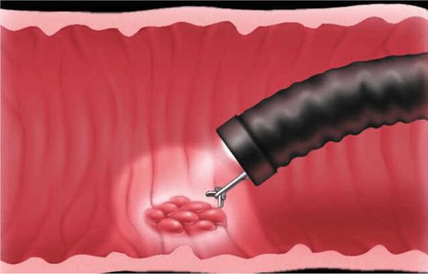 При необходимости с помощью прибора можно взять часть тканей для анализа