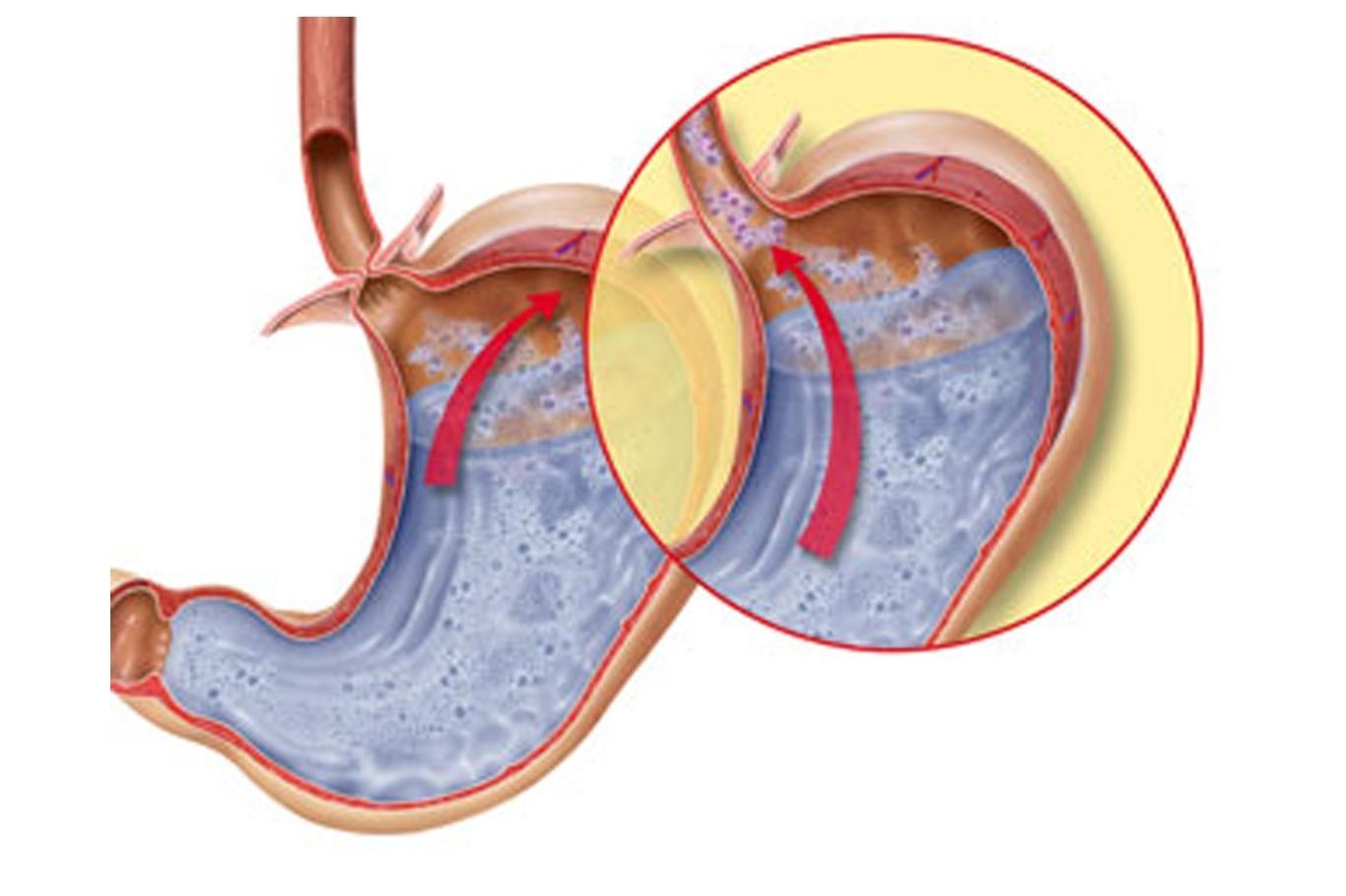 Как выглядит недостаточность кардии желудка