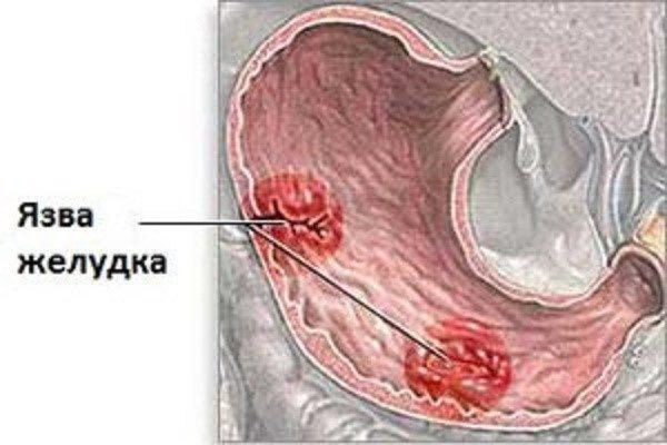 Как выглядит язва желудка