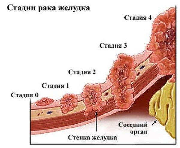 Какие стадии проходит рак желудка
