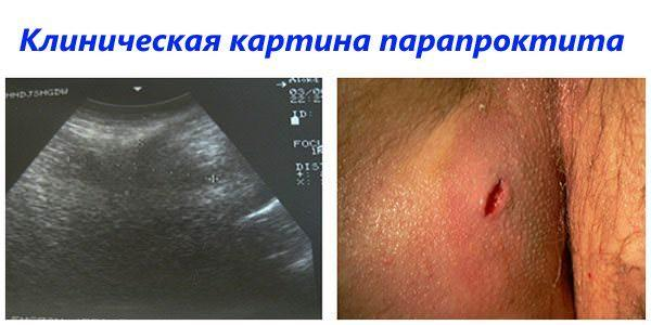 Клиническая картина парапроктита