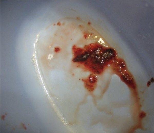 Красный водяной понос - признак кровотечения ближних к анальному отверстию органов ЖКТ