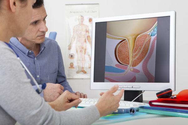 Лечение анальных трещин