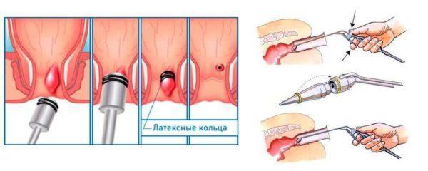 Лигирование геморроидальных узлов с помощью латексных колец