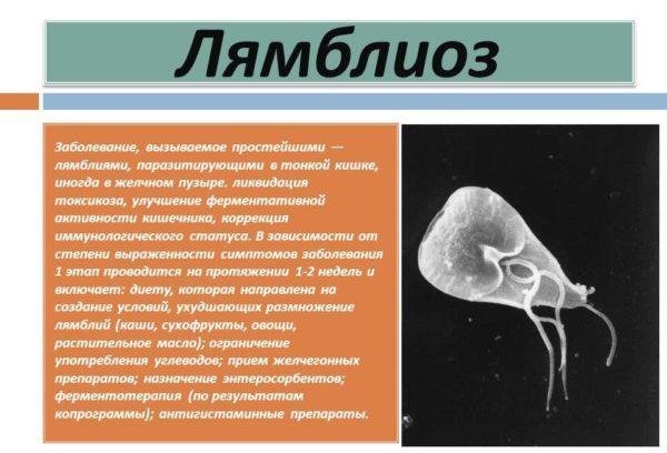 Лямблиоз – это инфекционное заболевание пищеварительной системы