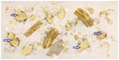 Малоизмененная форма, волокна (белки переварены частично)