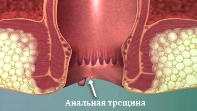 Лекарство от трещин в заднем проходе
