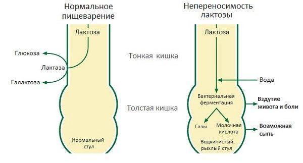 Механизм переработки лактозы в нормальной ситуации и при недостаточности