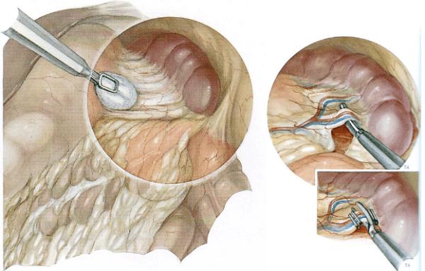 Методика лапароскопии на данный момент является наиболее распространенной при повреждениях внутренних органов