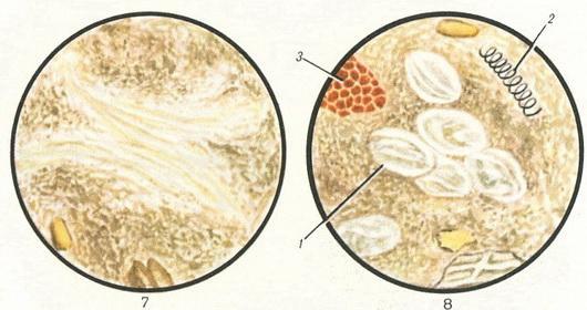 Мышечные волокна в кале