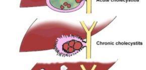 Наличие опухолей