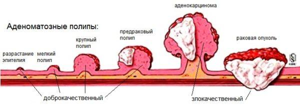 Наличие полипов в эпителиальном слое повышает риск заболевания аденокарциномой