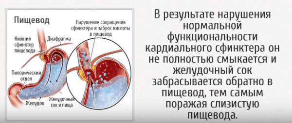 Нарушение кардии желудка