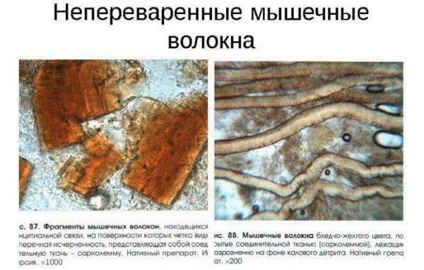 Непереваренные мышечные волокна в кале