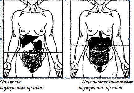 Опущение внутренних органов