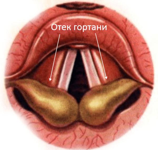 Если у человека есть аллергия на какие-либо анестезирующие препараты, может развиться сильнейший отек гортани
