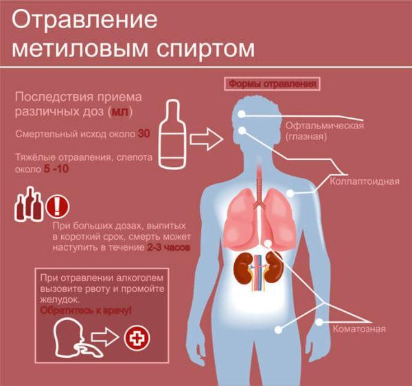 Отравление метиловым спиртом имеет серьезные последствия и высокий риск летального исхода
