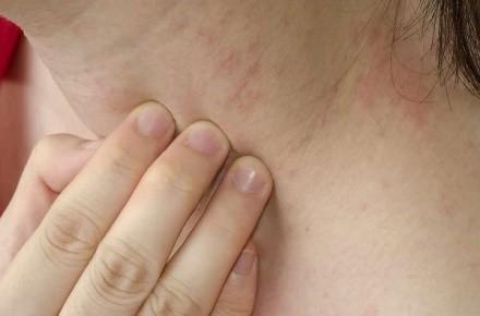Отсроченная аллергическая реакция переносится намного легче