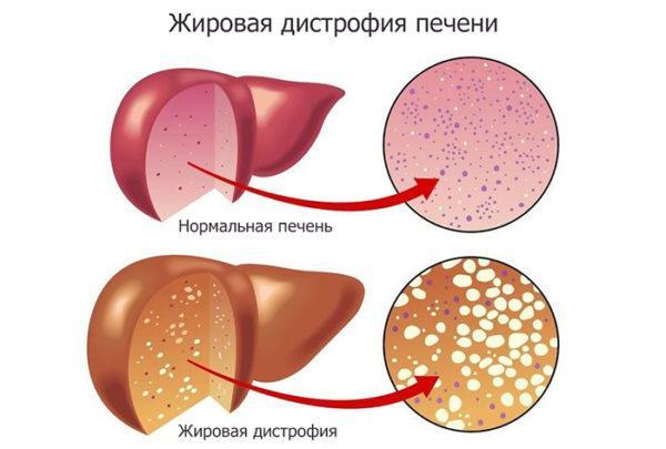 Печень при жировой дистрофии