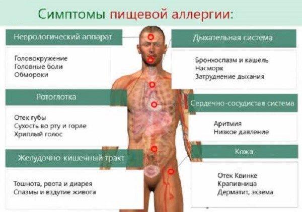 Какими могут быть симптомы аллергии, распространяющейся на еду