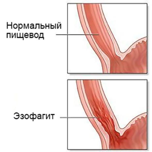 Пищевод при эзофагите