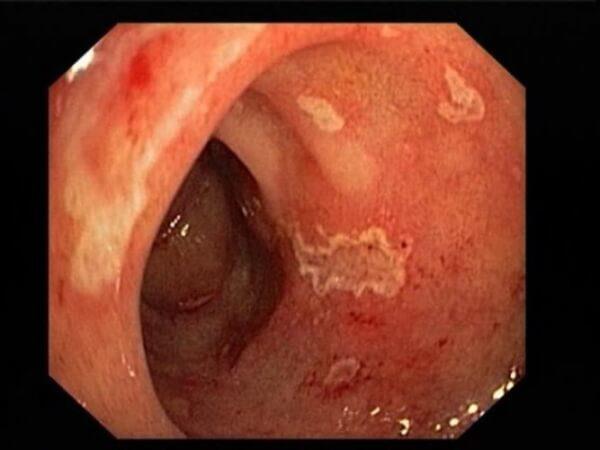 Под воздействием желудочной кислоты на слизистой пищевода образуются эрозии, а затем и язвы