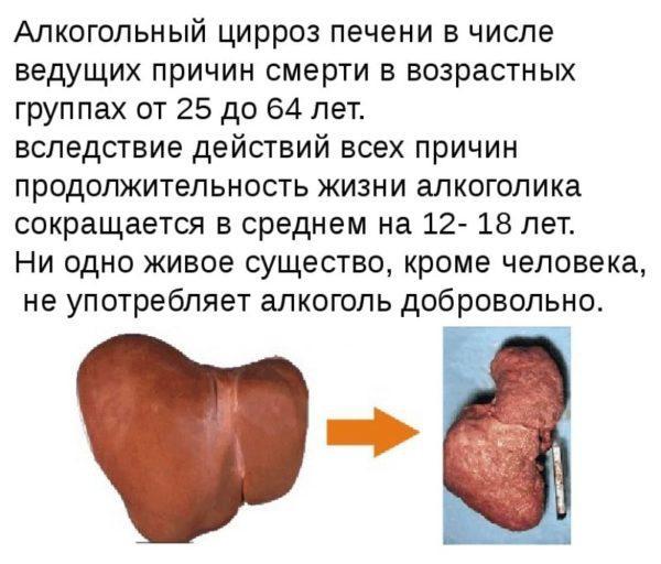Последствия цирроза печени