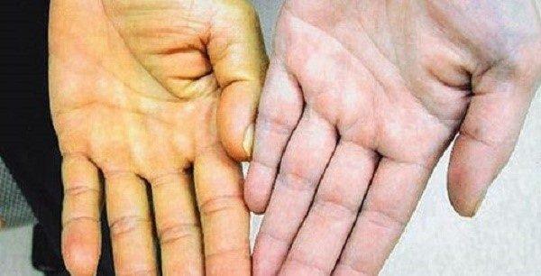 При болезни Боткина желтуха наступает до того, как появляются печеночные колики