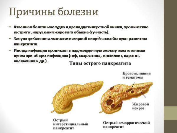 Причины заболеваний поджелудочной железы