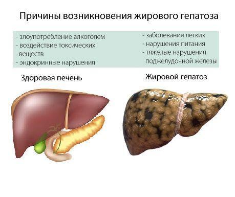 Причины гепатоза печени