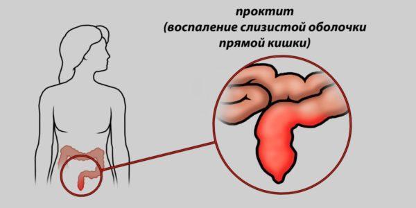 Проктит - воспаление прямой кишки