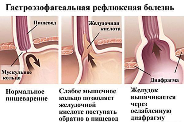 Процессы в желудке при гастроэзофагеальной рефлюксной болезни