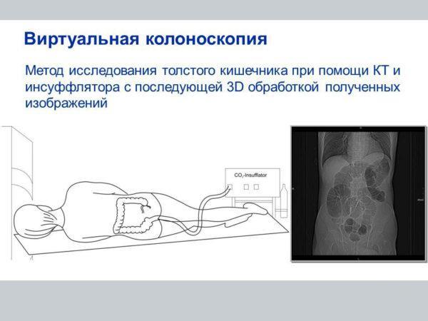 Проведение виртуальной колоноскопии