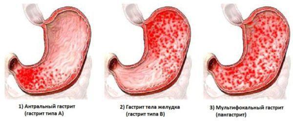 Разновидности гастрита при повышенной кислотности