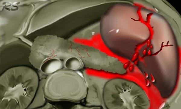 Разрыв селезенки характеризуется обильным внутренним кровотечением, а потому является опасным для жизни