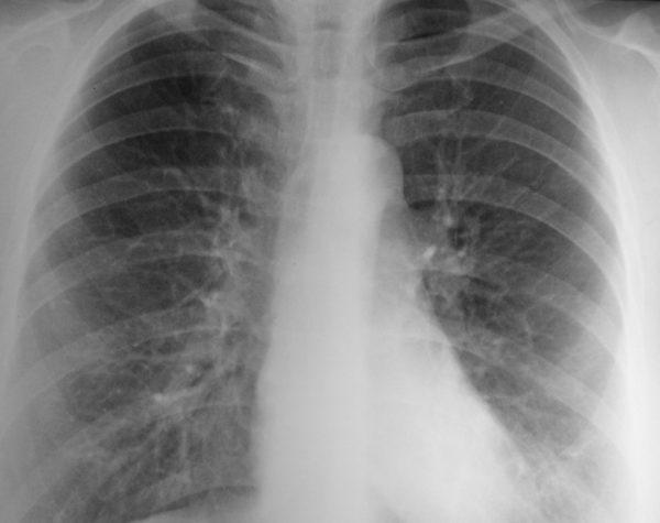 Рентгенография позволит точно определить степень повреждения селезенки и наличие травм остальных органов