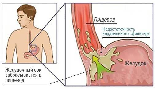 Схематичное изображение недостаточности кардии желудка